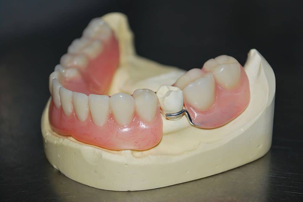 Partial Acrylic Denture